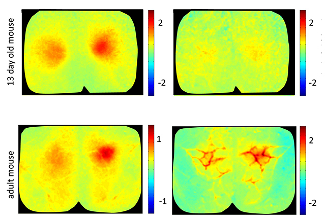 measurements show association between brain activity and blood flow in the mouse