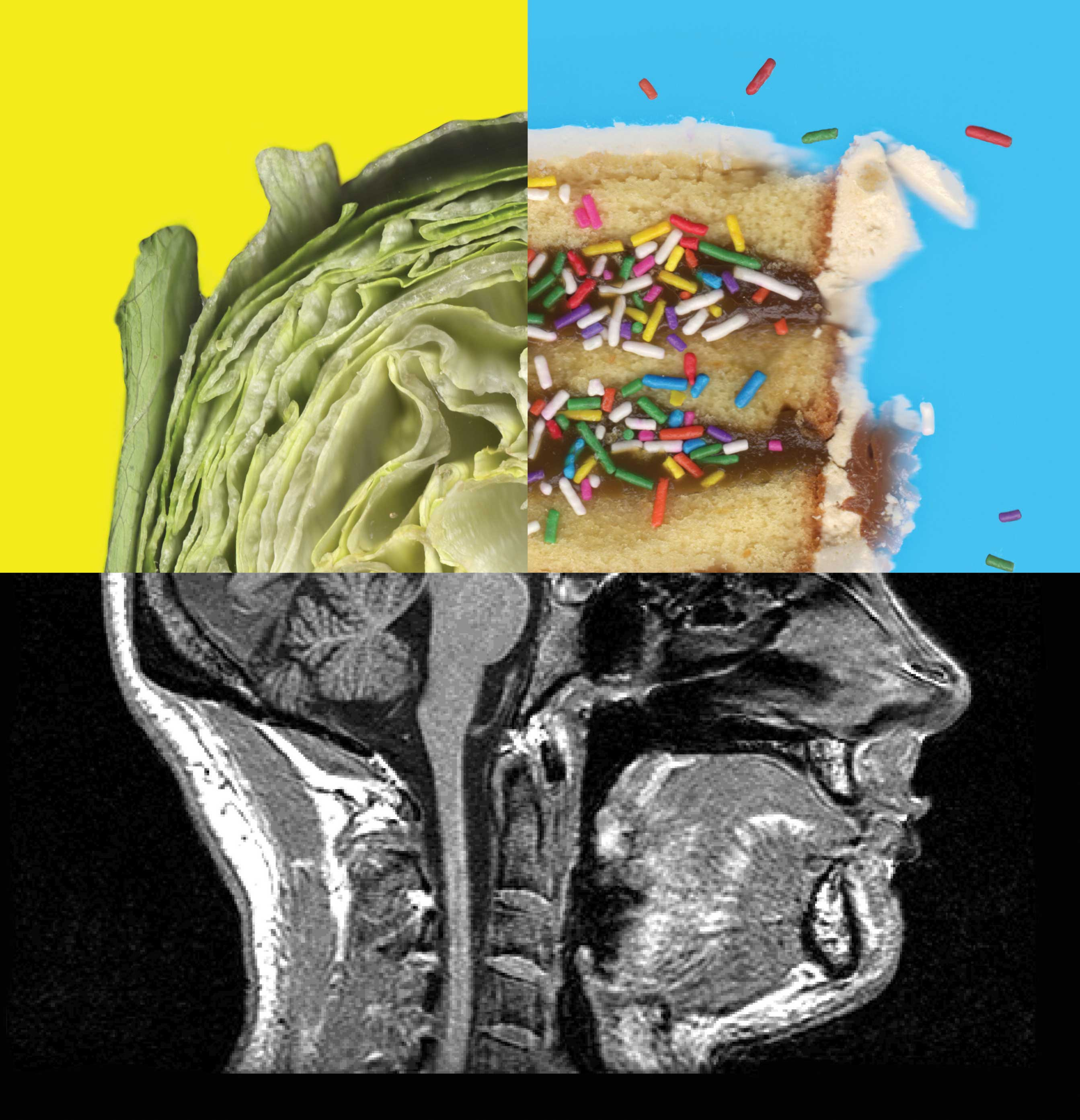 collage of human head made of lettuce, birthday cake with sprinkles, and xray of lower half of human head