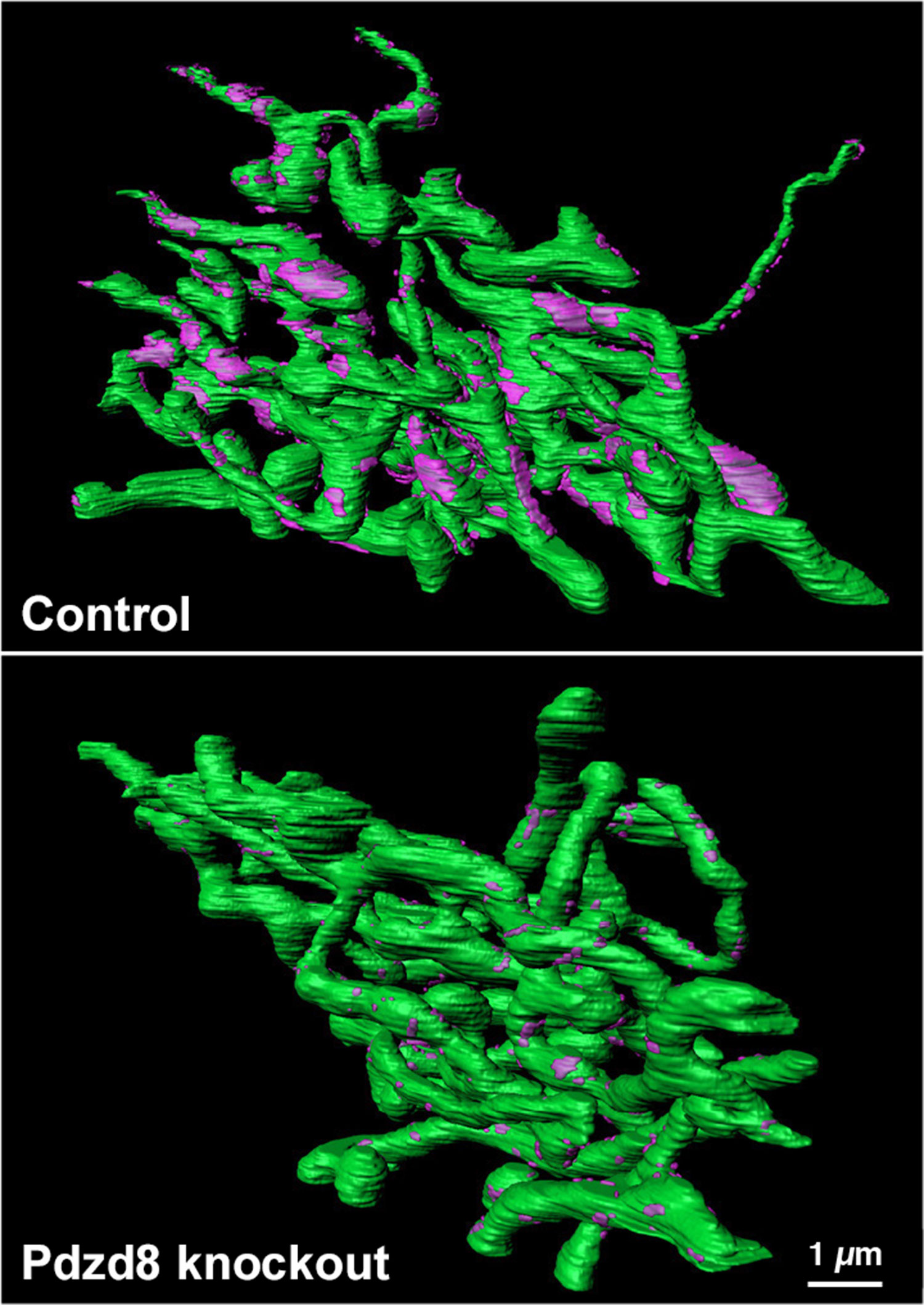 Reconstruction of mitochondrial-ER contact points in a control cell (top) compared to a cell lacking PDZD8 Credit: Yusuke Hirabayashi/Polleux Lab/Columbia's Zuckerman Institute)