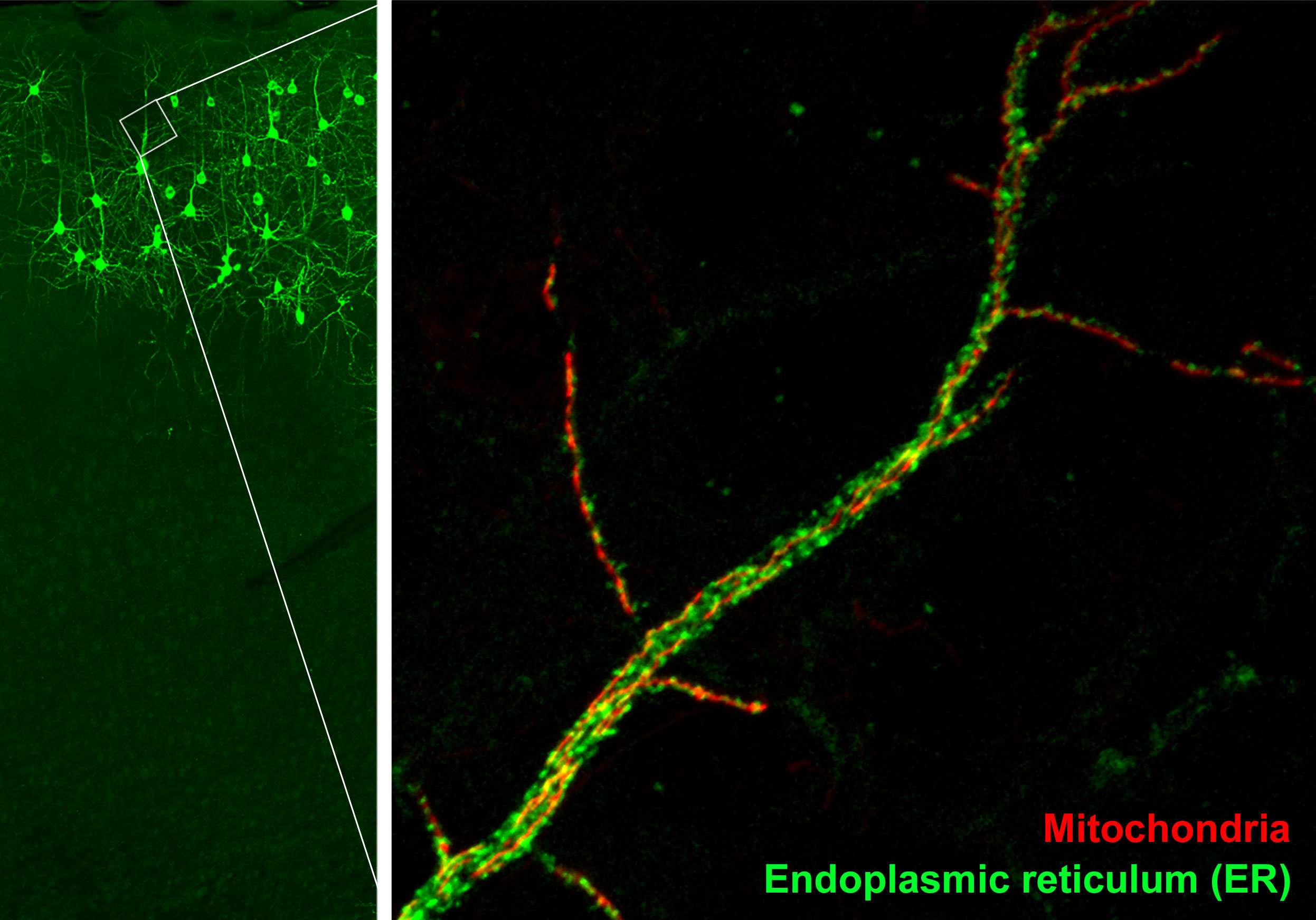 Zoomed-in image of mitochondria (red) and endoplasmic reticulum (green) in the dendrite of a neuron (Credit: Yusuke Hirabayashi/Polleux Lab/Columbia's Zuckerman Institute).