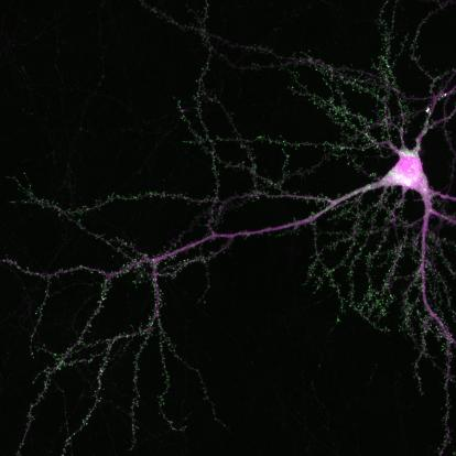 Single neuron in the mouse cortex showing SRGAP2 with flourescent marker