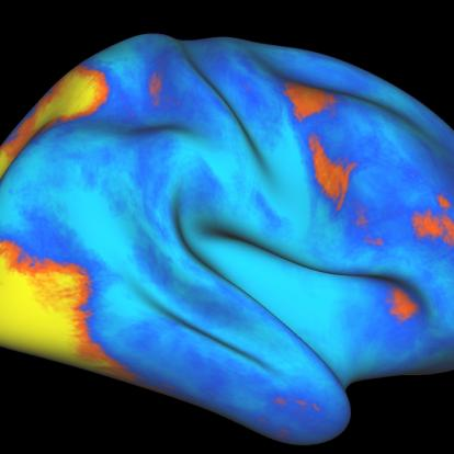 fMRI scan of human brain highlights areas involved in unique attention network