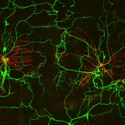 flourescent image of highly branched neurons in the mouse brain