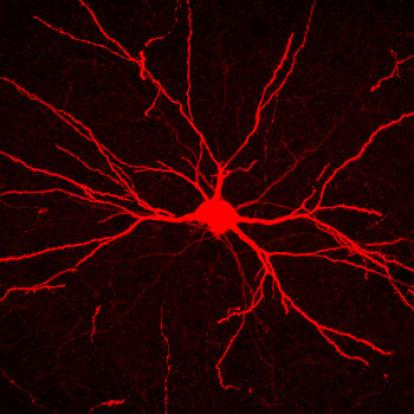 fluorescent image of a neuron in red with numerous branches