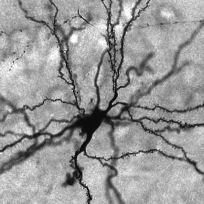 black and white image of neuron found in the amygdala with numerous projections