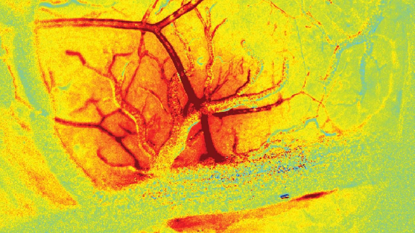 new imaging techniques reveal a rush of blood (red) to vessels in the brain