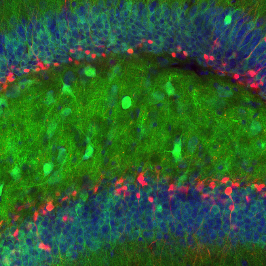 green flourescently labelled neurons in the mouse dentate gyrus